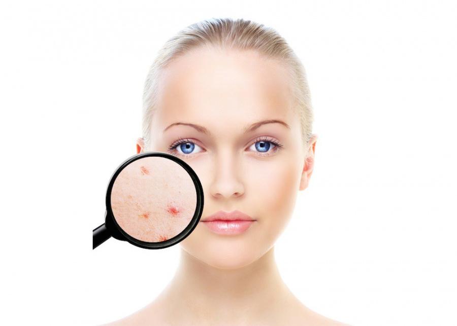 omega 3 pentru acnee